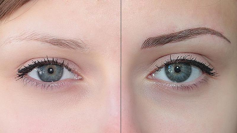 До и после процедуры татуажа
