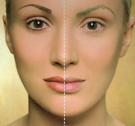 До и после удаления перманентного макияжа