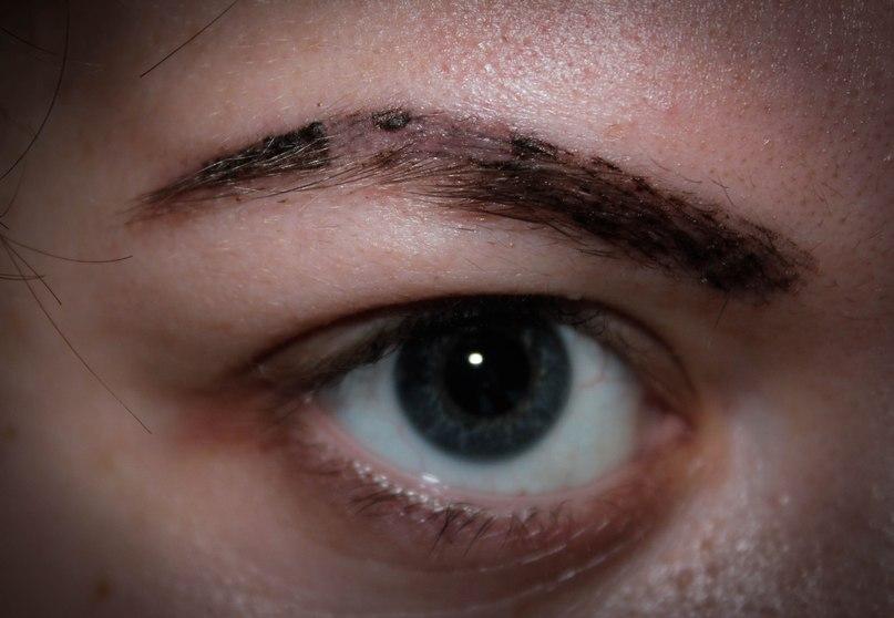 корочки после татуажа бровей фото