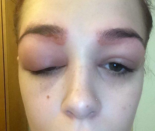Девушка испытывает боль от аллергии
