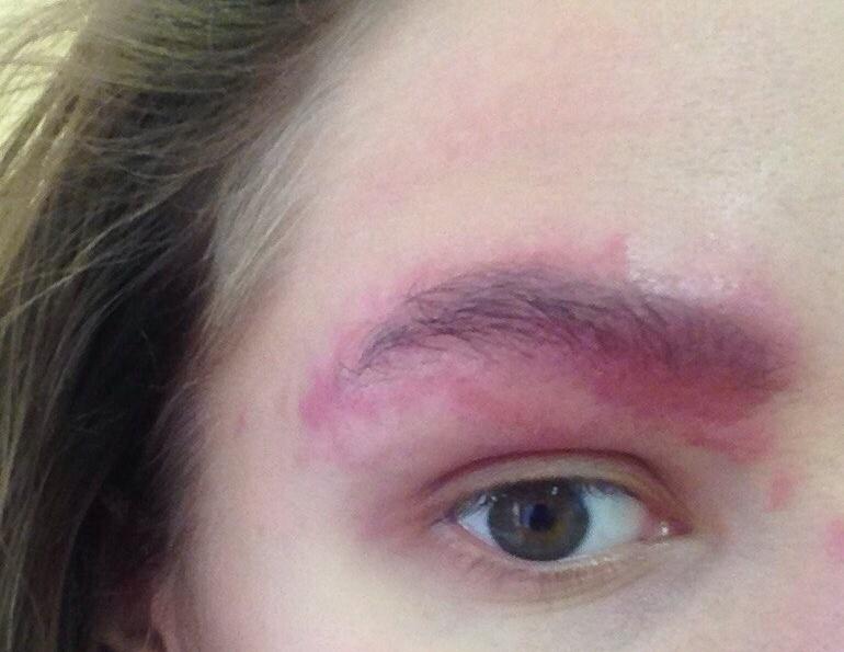 аллергия на хну для бровей лечение отзывы