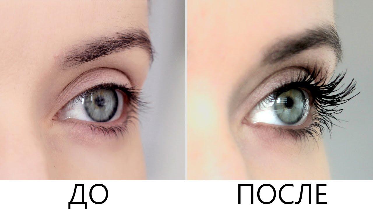 Платинус: до и после