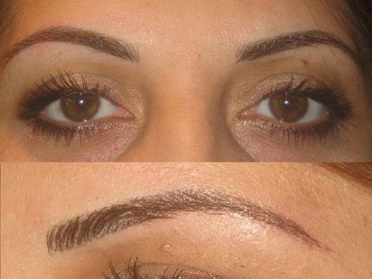 Результат процедуры по удалению волосков
